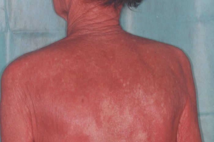 Photoaging – detrimental changes to skin induced by chronic UVA and UVB exposure